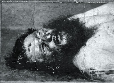 Taken during his Autopsy